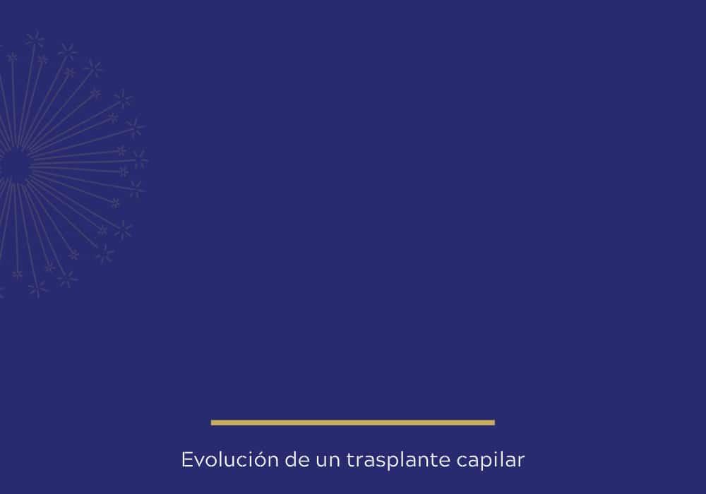 Evolución de un trasplante capilar